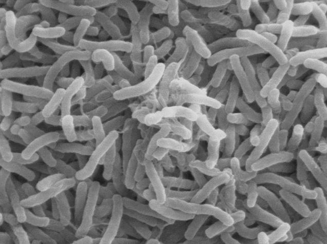 Mycobacterium leprea. (Source: http://bioweb.uwlax.edu/bio203/s2008/jaedike_alic/whatisbacteria.htm)